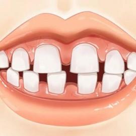 为什么牙缝长个息肉怎么办(牙齿缝隙长肉是怎么回事)