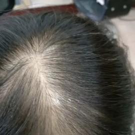 为什么头发会痒掉头发怎么办(头发油腻痒脱发是什么原因)