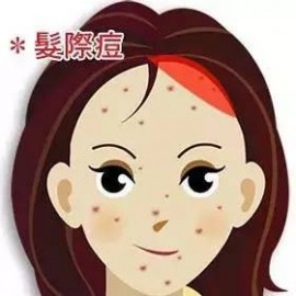 为什么用护肤品起粉刺怎么办(长闭口用什么护肤品好)