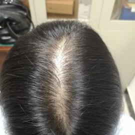 为什么头发会痒掉头发怎么办(掉头发严重头皮出油还痒)